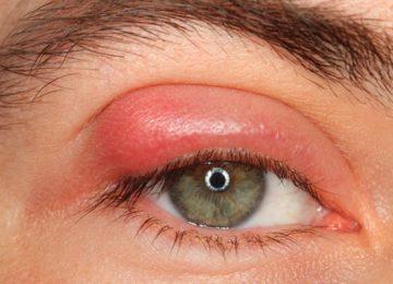 ما هو الكالزيون في العين و ما هي أعراضه وعلاجه؟
