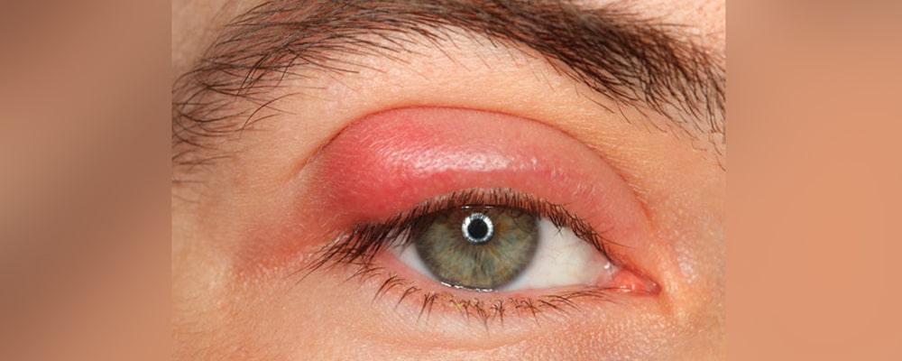 ما هو الكالزيون في العين و ما هي أعراضه وعلاجه مرکز بصیر لطب العیون