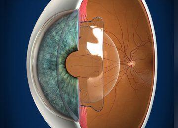 زراعة العدسة في العين مع الاحتفاظ بالعدسة الطبيعية (استعمال عدسة phakic)