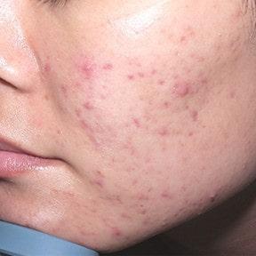 ما أنواع حبوب الوجه و علاجاتها مرکز بصیر لطب العیون