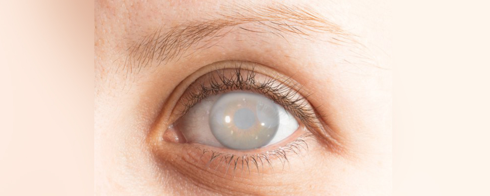 Cataracts, symptoms and treatment