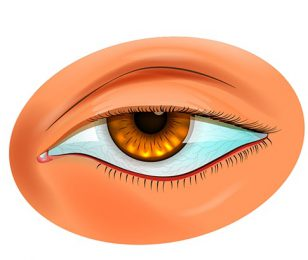 Ptosis surgery and complications