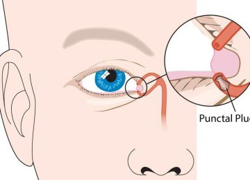 Punctal Plug as a treatment for dry eyes