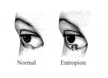 Entropion and eyelid problems