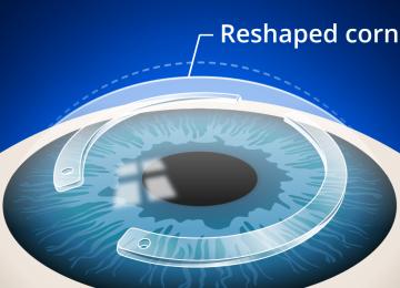 Corneal ring implantation method