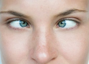All you need to know about Strabismus surgery