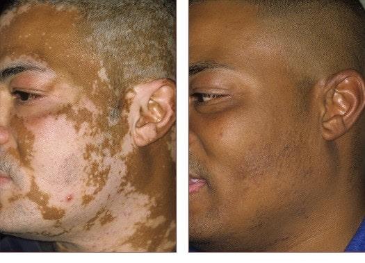 The Vitiligo Disease And Loss Of Skin Color Basir Eye Center