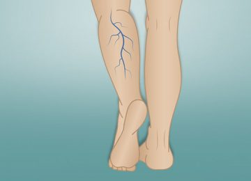 Varicose Veins , its causes and treatment