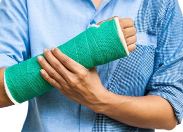 What is bone fracture?