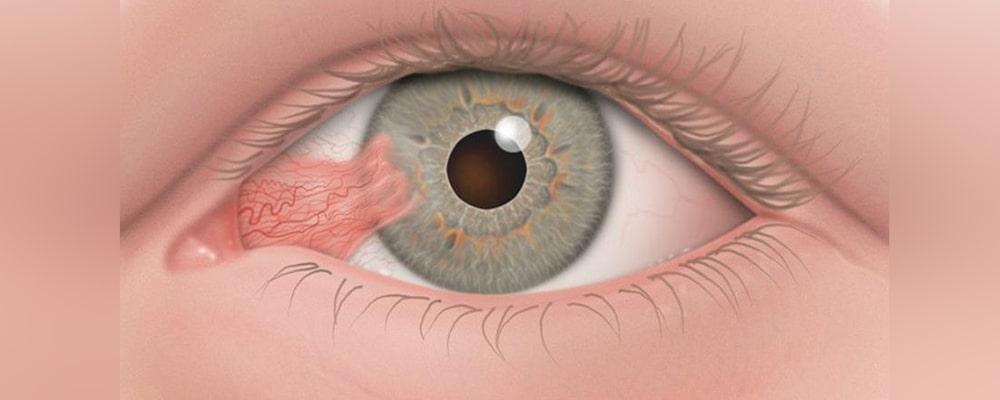 ناخنک چشم (Pterygium)