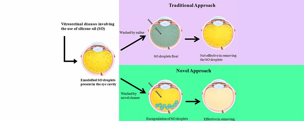 تزریق روغن سیلیکون برای جدا شدگی شبکیه