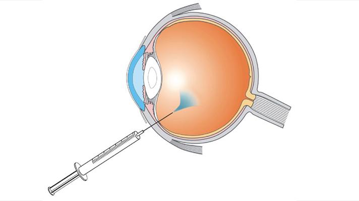 جراحی تزریق چشمی (اینتراویترال)