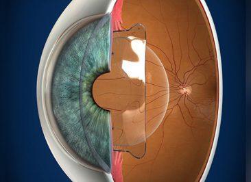 لنز فیکیک (لنز داخل چشمی)