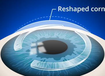 جراحی کاشت رینگ قرنیه (Corneal ring implantation)