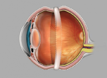 جراحی اسکلرال باکلینگ چشم (Scleral buckling)
