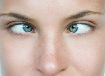 جراحی انحراف چشم یا لوچی (استرابیسم)