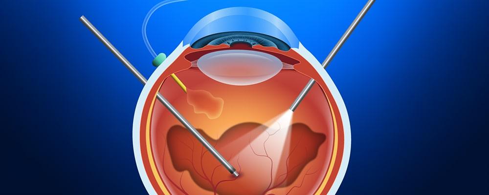 جراحی ویترکتومی (Vitrectomy)