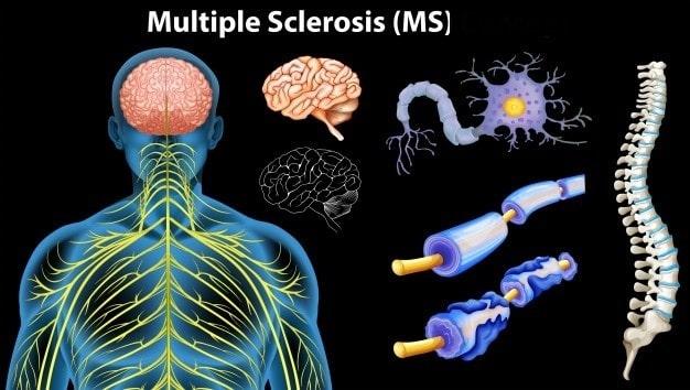 درمان برای حملات بیماری MS