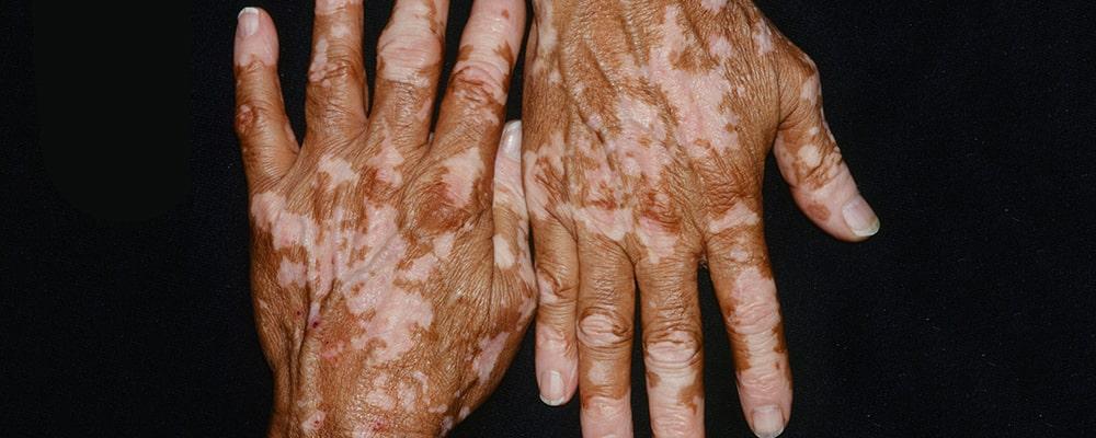 بیماری برص و از دست دادن رنگدانههای پوست