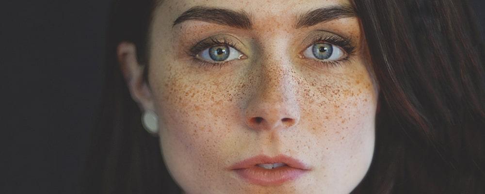 عوامل ارثی، دلیل اصلی بروز لک صورت