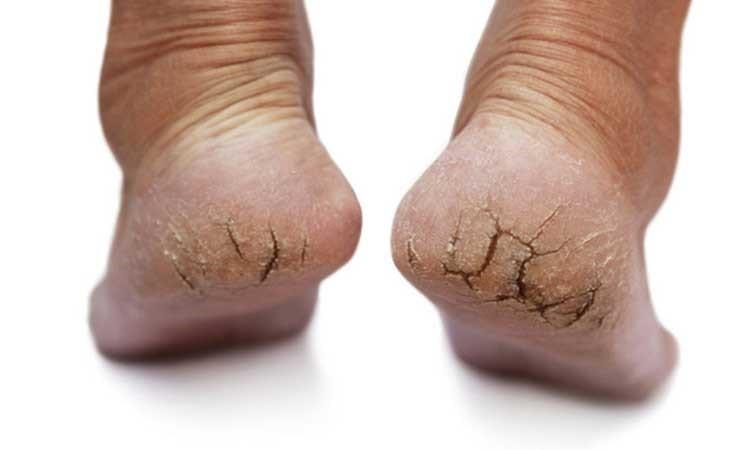 عوامل ایجاد خشکی پوست
