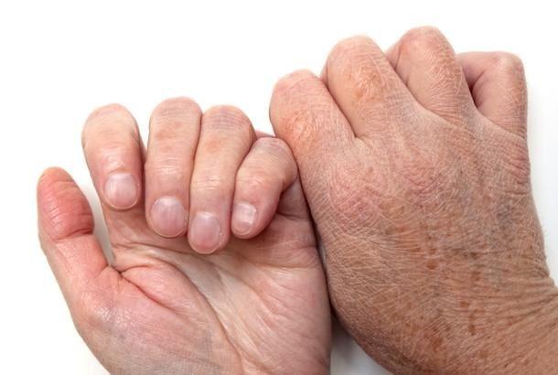 شناخت عوامل ایجاد خشکی پوست
