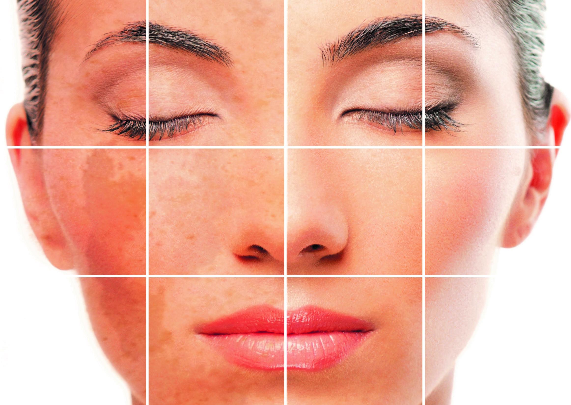 مشاورههای طلایی مراقبت از پوست