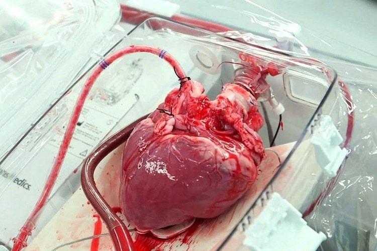 شایعترین جراحیهای قلب