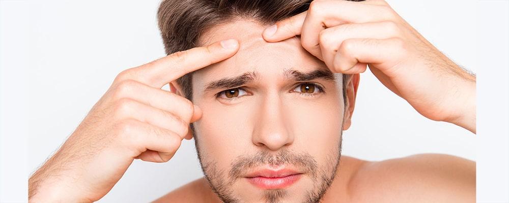 انواع جوش صورت و درمان آنها کدام اند؟