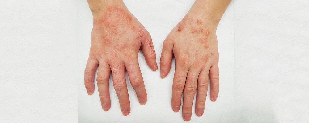 علائم، درمان و دلایل بروز بیماری اگزما