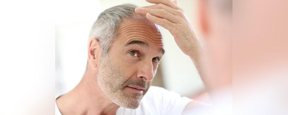 زیبایی و جوانی را با کاشت موی طبیعی احساس کنید