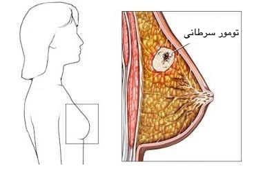 سرطان سینه چیست و علائم آن کدام است ؟