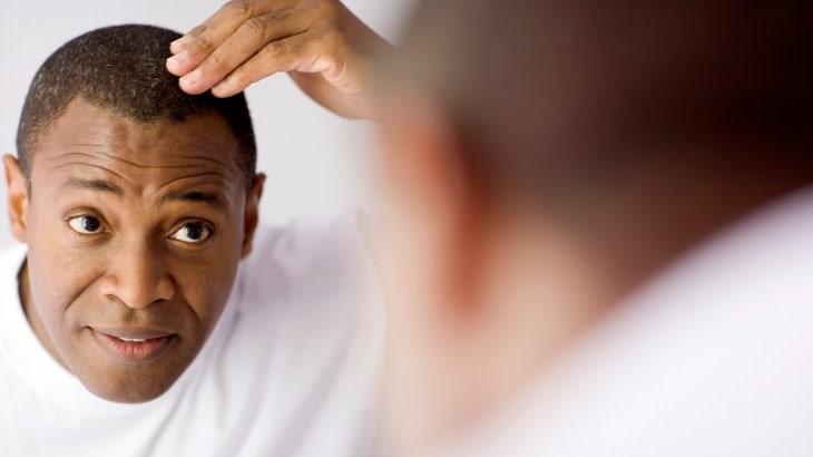 کاشت مو و پیوند موی طبیعی
