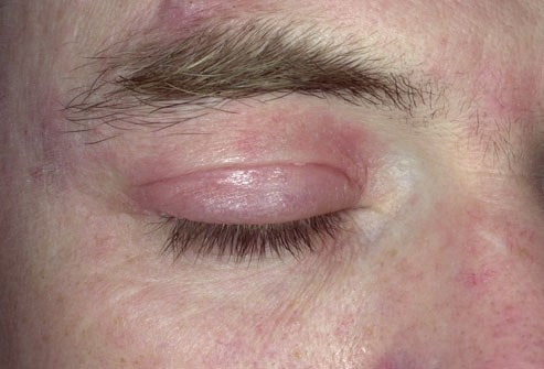 علائم بیماری اگزما