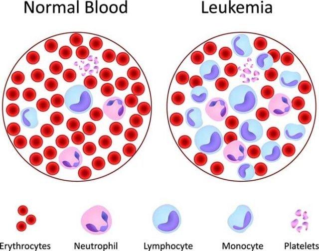 سرطان خون چیست