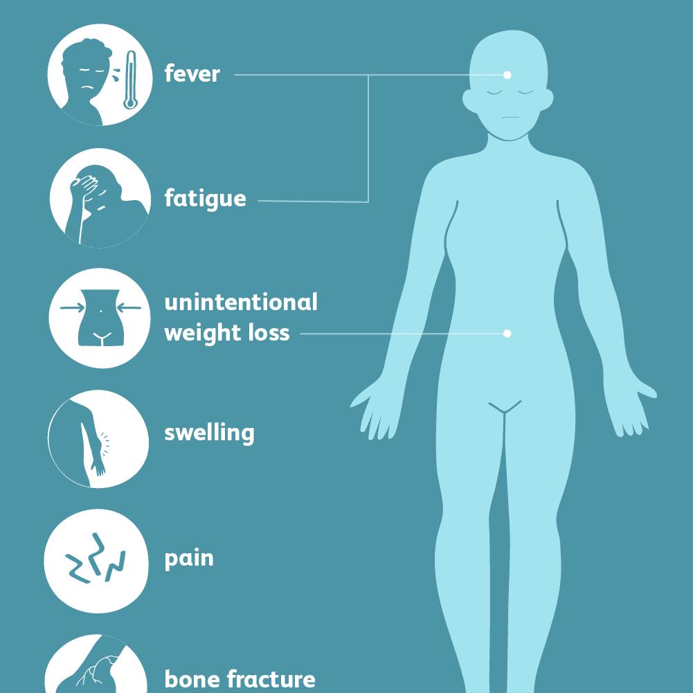 نشانه ها و علائم عمومی سرطان