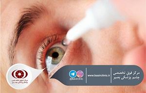 تازههای چشمپزشکی / تأثیر پروفیلاکتیکِ nepafenac را بر روی الگوی fovea و ادم ماکولا