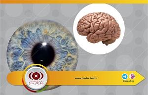 تازههای چشمپزشکی / مرور بر رویه معمول در تشخیص و درمان شکایات چشمی وابسته به ضربه مغزی