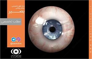 تازههای چشمپزشکی