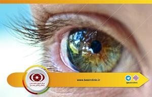 تازههای چشمپزشکی : ارائه یک گزارش از بانک چشم وابسته به AMRS
