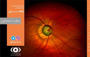 تازههای چشمپزشکی / بررسی اثرات جراحی ترابکولکتومی و ایمپلانت دستگاهی گلوکوما(GDI)
