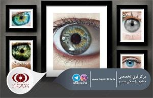 تازههای چشمپزشکی / بررسی استفاده ازNSAID های موضعی در کنار درمان موضعی استروییدی