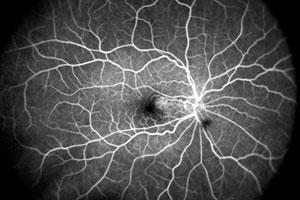 بررسی شبکیه و عروق خونی