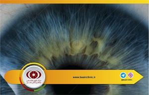 تازههای چشم پزشکی / بررسی میزان بروز و عوامل خطر بسته شدن مردمک توسط پیدایش حباب هوا در اتاقک قدامی