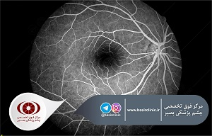 تازههای چشمپزشکی / یافتههای حاصل از OCT در ادم ماکولای ثانویه به انسداد ورید پس از مصرف اینتراویترال