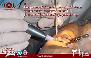 بررسی دو روش ۱،۸ ميلي متري micro–incision و ۲،۷۵ ميلي متري standard incision