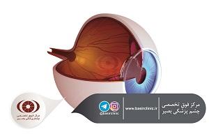 تازههای چشمپزشکی / بررسی یک مطالعۀ مولتی سنتر بین المللی پیامدهای کلینیکی حاصل از تعبیۀ یک لنز داخل چشمی با دید گسترده