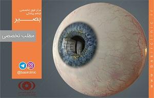 تازههای چشمپزشکی / بررسی پارامترهای چشمی و سیستمیک را در مبتلایان به رتینوپاتی پرولیفراتیو دیابتی (PDR)