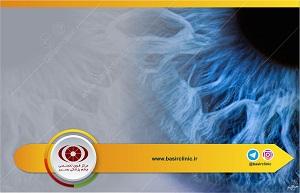تازههای پزشکی / بررسی ایمنی تزریق intracameral موکسی فلوکساسین رقیق نشده ۰/۵%