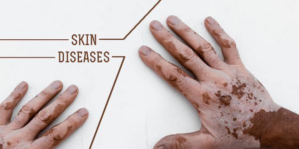 انواع بیماری پوستی را بهتر بشناسید